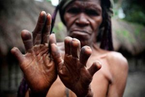 dani tribe cut off finger