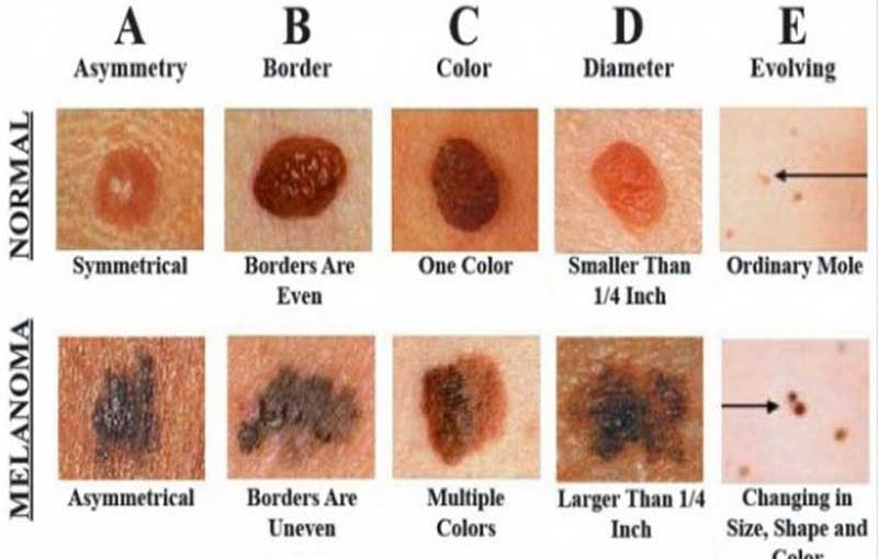 How-To-Detect-Skin-Cancer